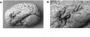 Il cervello di Leborgne: si nota l'area cerebrale lesionata (foto B) nell'emisfero sinistro.