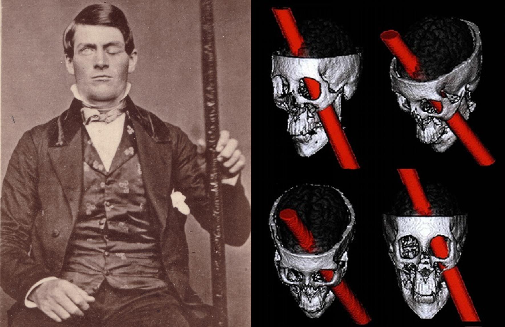Phineas Gage posa con l'asta che gli attraversò il cranio (nella ricostruzione a destra).